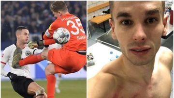 Mijat Gacinovic tras la brutal patada recibida en el partido contra el Schalke 04