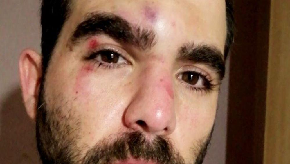 El periodista Robert Calvo es agredido en el Raval