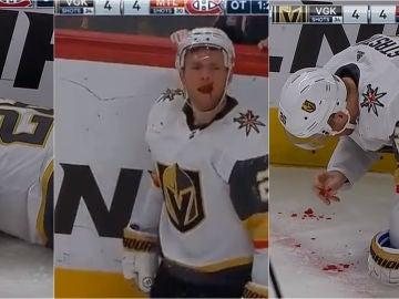 Paul Stastny, en el momento de su terrible golpe en la cara