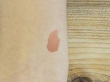 Macha de la piel
