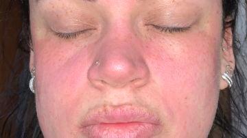 Una joven inglesa se destroza la cara con una crema facial de supermercado
