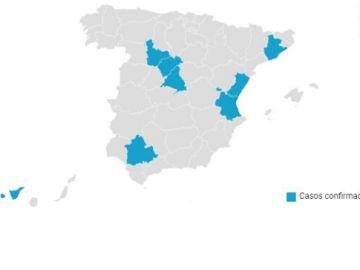 23 casos de coronavirus confirmados en España