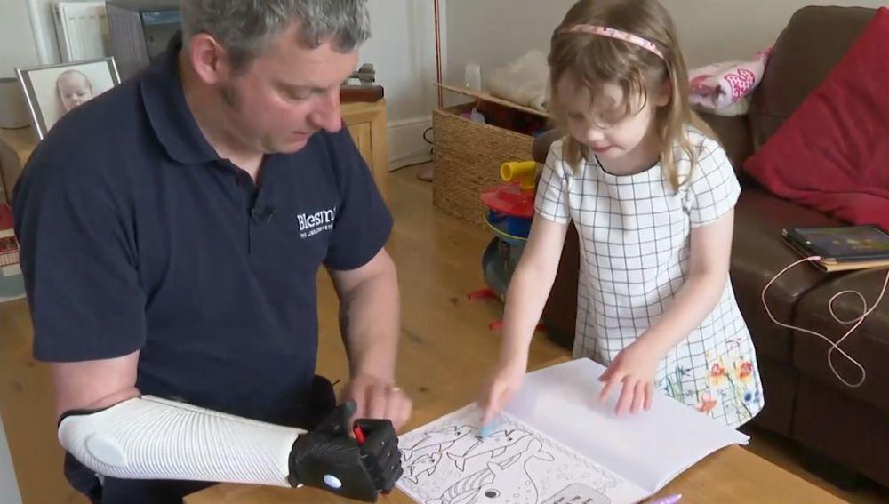Vuelve a jugar con su hija gracias a un brazo biónico impreso en 3D