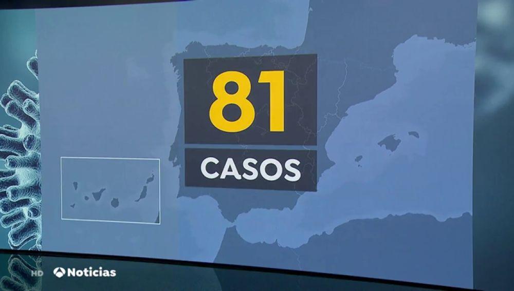 REEMPLAZO | Ascienden a 81 los casos de coronavirus registrados en España