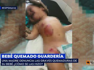 Bebé quemado en una guardería
