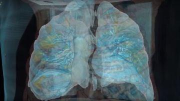 Imagen de unos pulmones afectados por coronavirus.