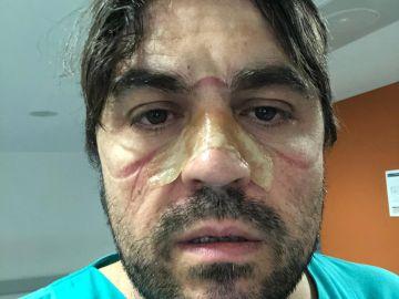 Marcas en la piel de un sanitario de Ourense.