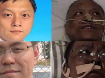 Yi Fan y Hu Weifeng experimentaron un extraño cambio de pigmentación tras superar el coronavirus