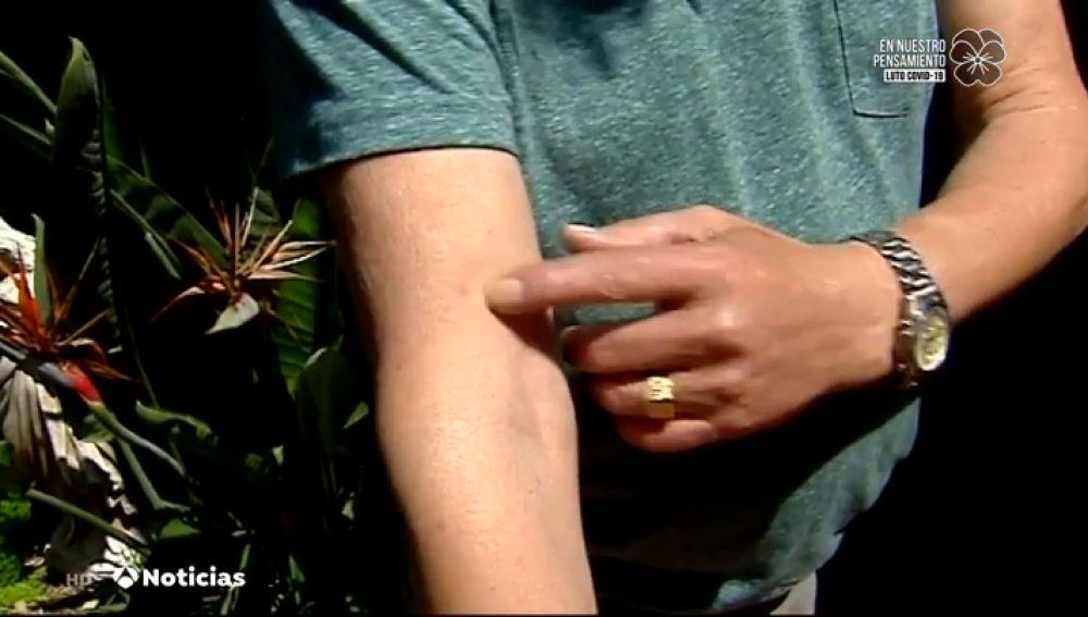 """Los vecinos de Castellón, preocupados por la plaga masiva de mosquitos: """"Te pican a través de la ropa"""""""