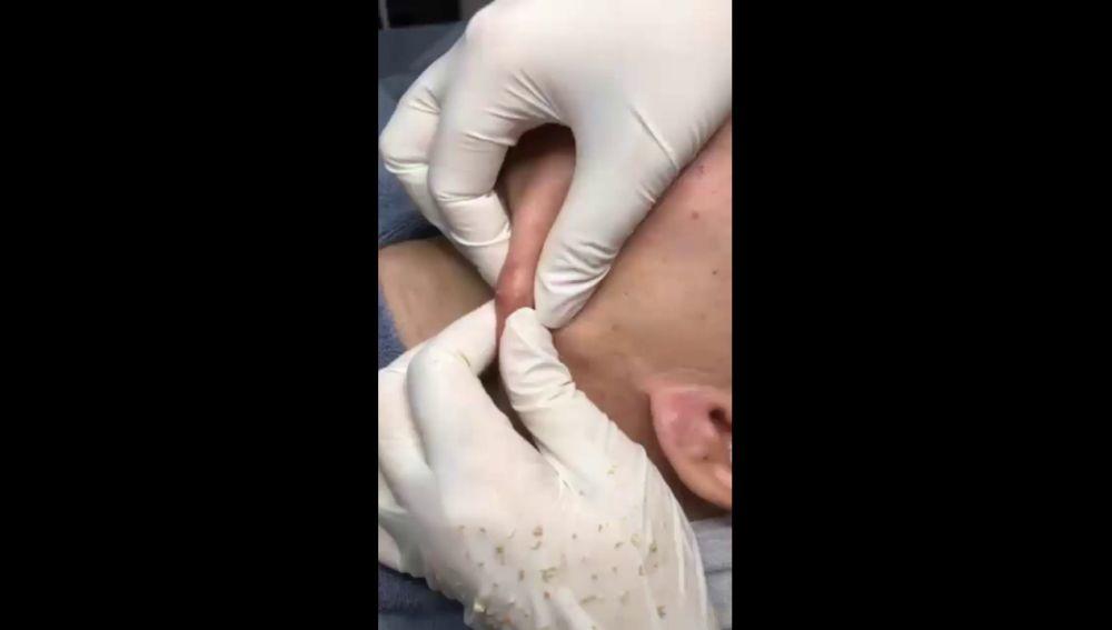 Explotando un grano en el cuello