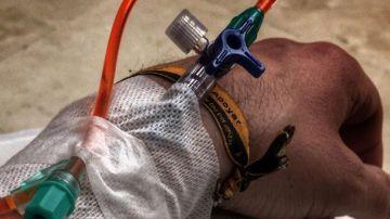 Imagen de Dani Rovira durante su sexta sesión de quimioterapia
