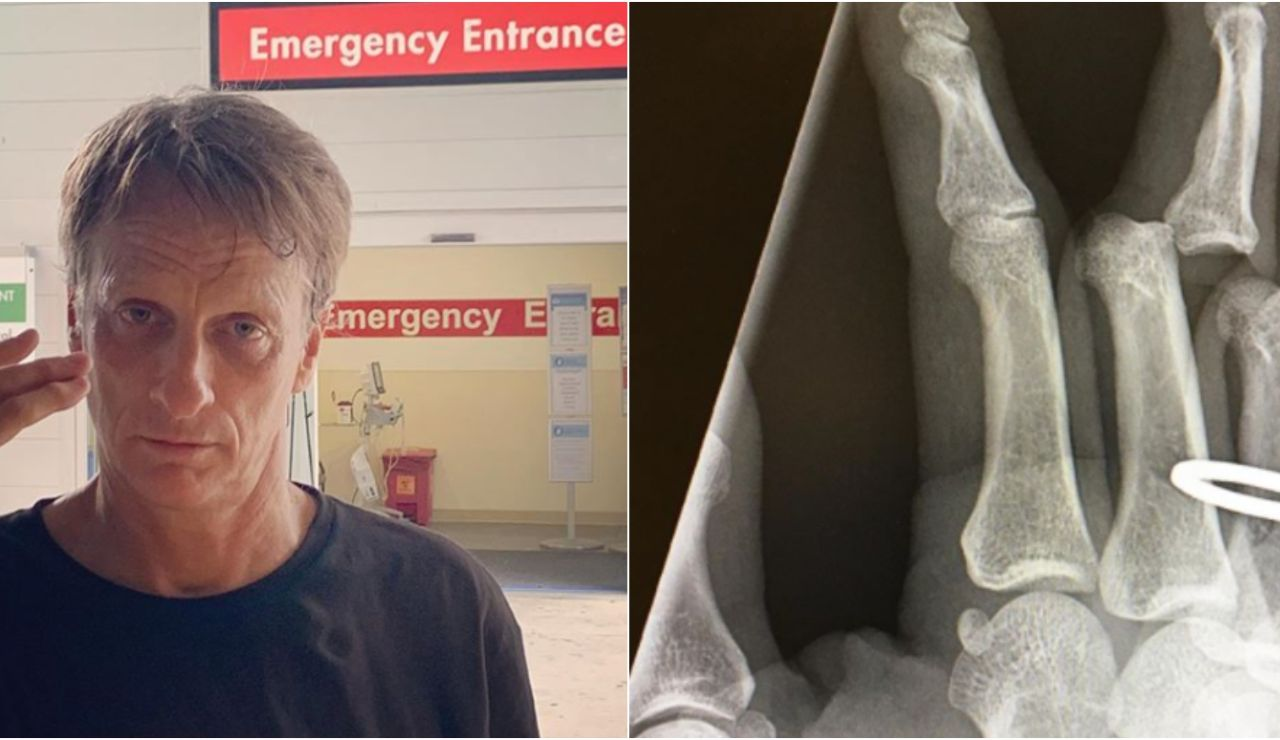 Imagen de la terrible lesión de Tony Hawk