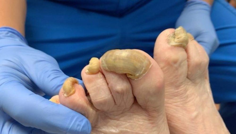 Pediatra curando un pie