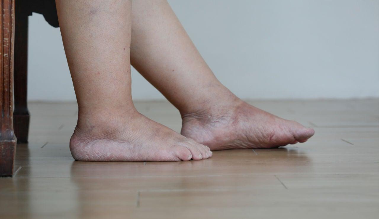 Piernas y tobillos hinchados