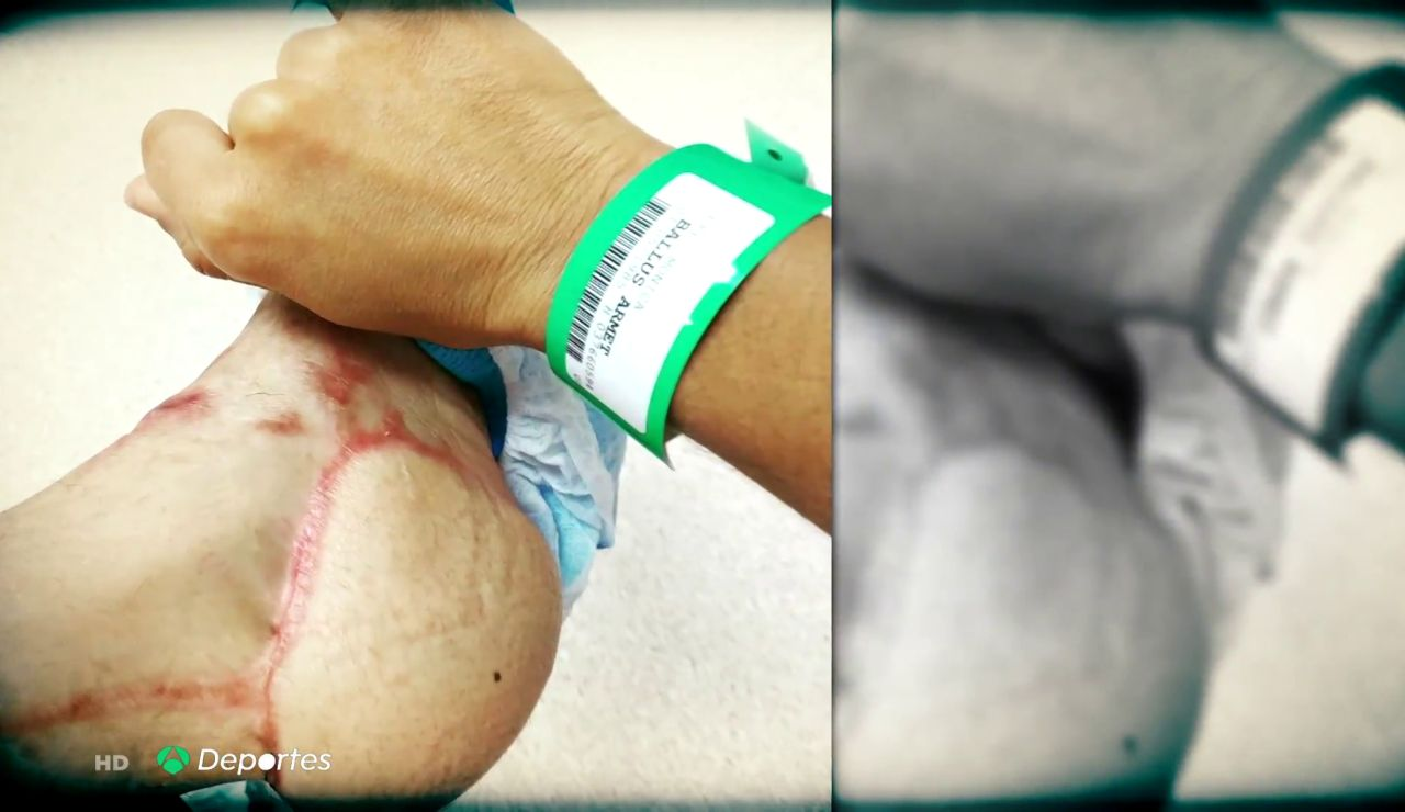 "La historia de superación de Mónica Ballús tras un accidente de moto: ""Me reconstruyeron un talón XXL"""