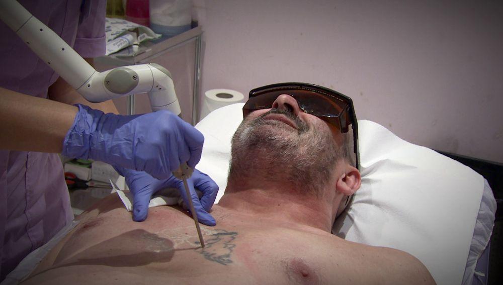 El duro proceso de Paco: eliminar los 19 tatuajes que tiene en todo el cuerpo