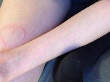 Una adolescente tiene una rara enfermedad que convierte su piel en un telesketch
