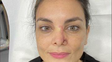 Mónica Carrillo mostrando su proceso de recuperación de un cáncer de piel