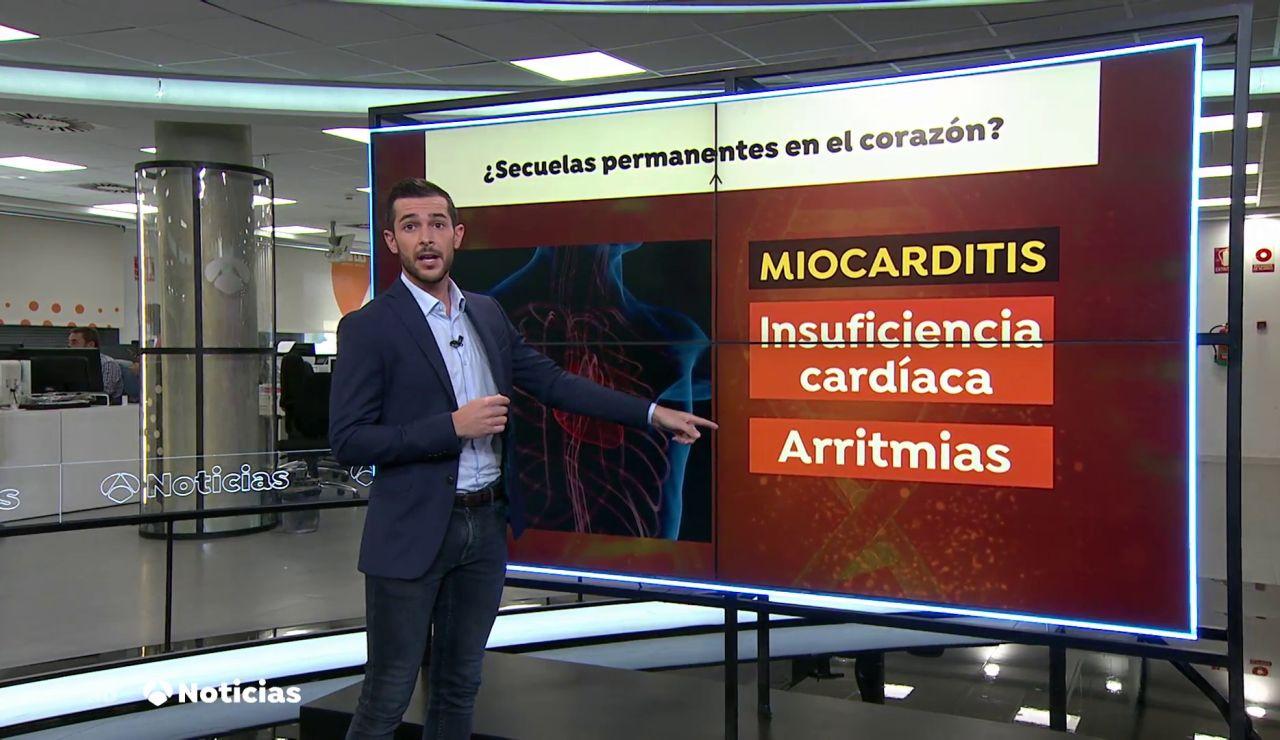 El coronavirus puede dejar secuelas irreversibles en el corazón como la miocarditis