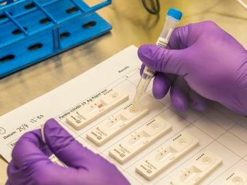 Enfermeros piden regular el precio de los test de antígenos