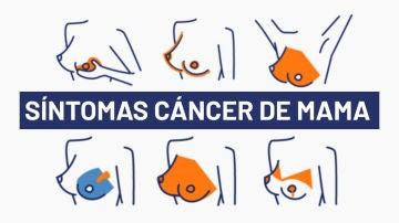 Día del cáncer de mama 2020: 5 síntomas del cáncer de mama para una detección temprana