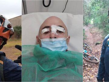 Miquel Castillejos muestra las terribles heridas sufridas tras toparse con una trampa para ciclistas