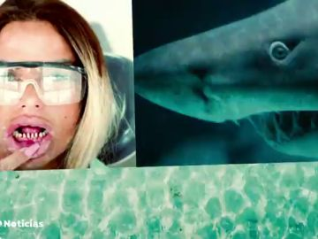 Dientes de tiburón, la última moda entre algunos 'influencers'