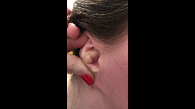 VÍDEO: Una mujer estadounidense explota un gigantesco grano dentro de su oreja