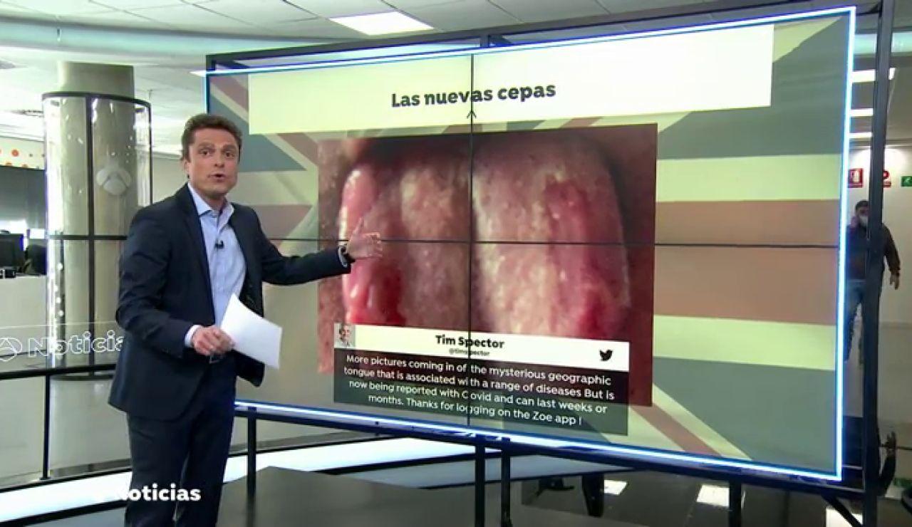 La 'lengua Covid', el nuevo síntoma que presentan algunas personas contagiadas por coronavirus