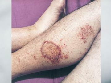 Un hombre se infecta hasta 3 veces de coronavirus en menos de un año