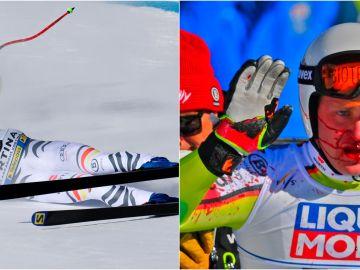 El esquiador Romed Baumann acaba con la cara ensangrentada tras este tremendo impacto en mitad de un descenso