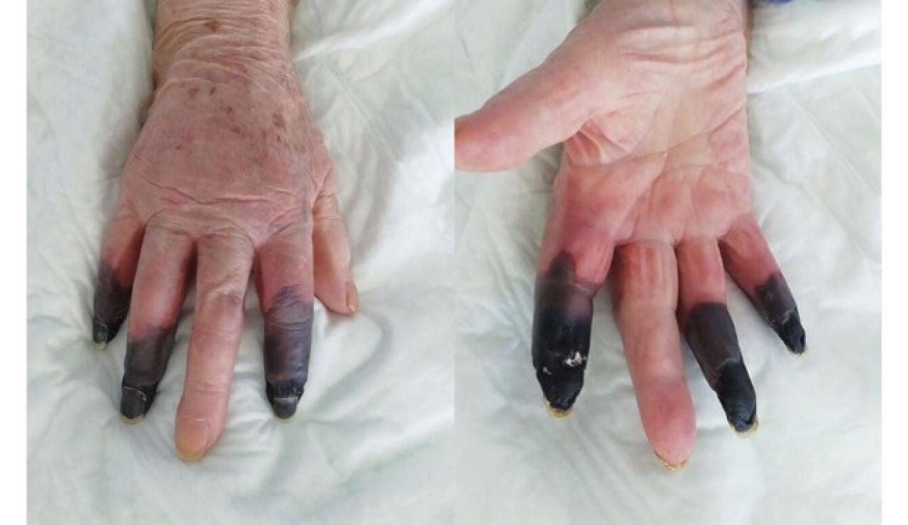 Los dedos encangrenados de la mujer