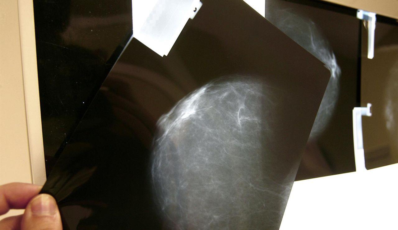 Avances en los tratamientos del cáncer de mama: no se necesitará quimioterapia