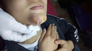 Una dermatóloga revienta un grano de proporciones bíblicas en la barbilla de un paciente