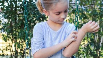 Cuidado con dejar que tus hijos que cojan higos bajo el sol: hablemos de fitofotodermatosis