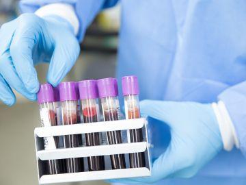China baraja analizar muestras de sangre de Wuhan previas al primer brote de coronavirus