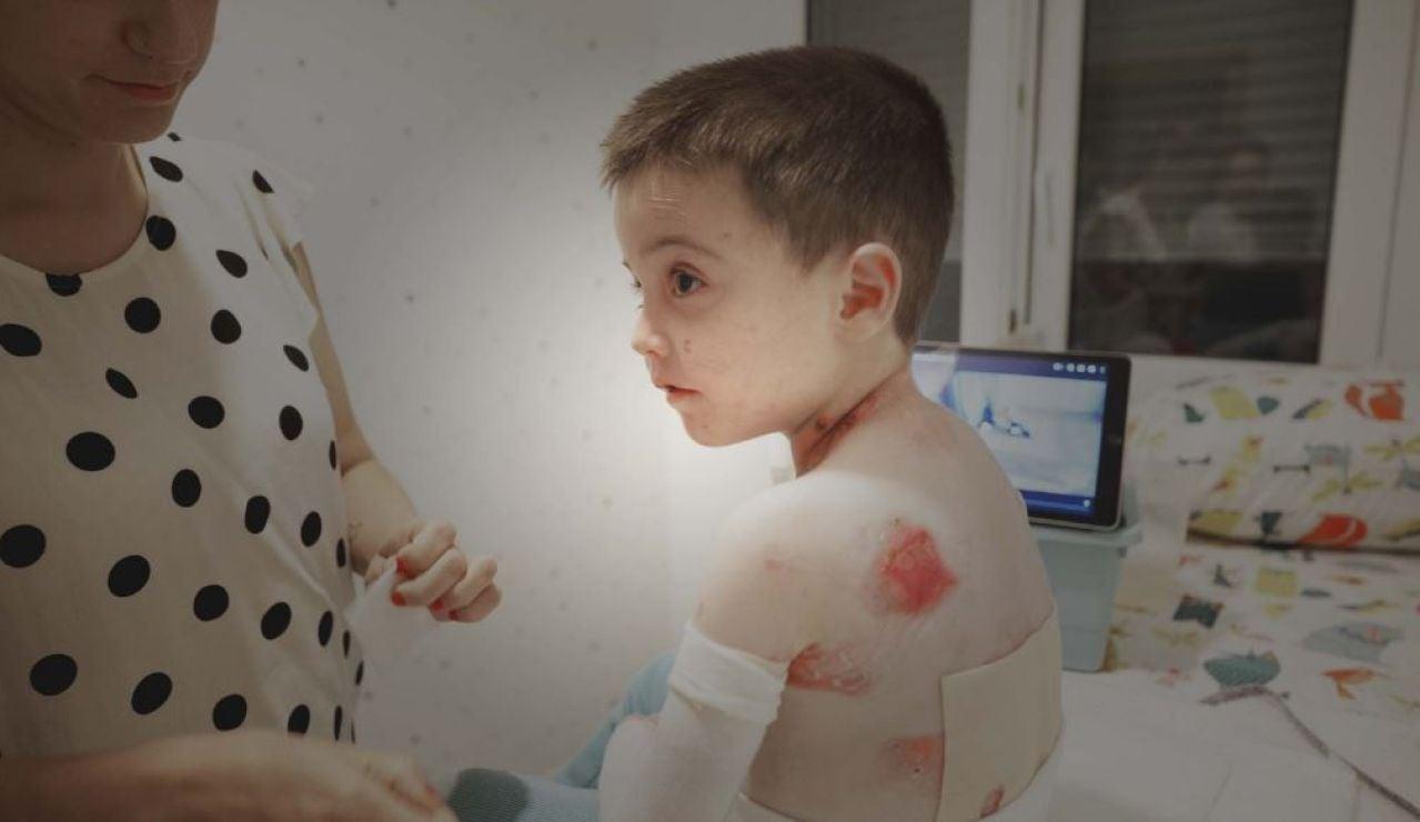 Piel de Mariposa, una enfermedad rara e incurable que afecta a más de 500 personas en España